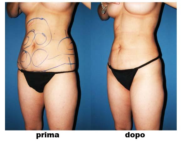 liposuzione donna
