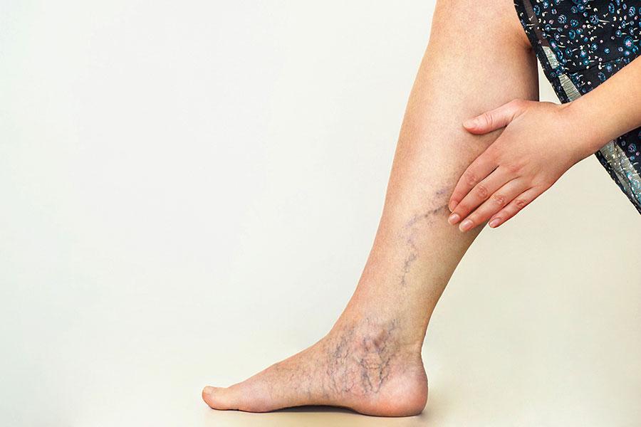 gonfiore gambe