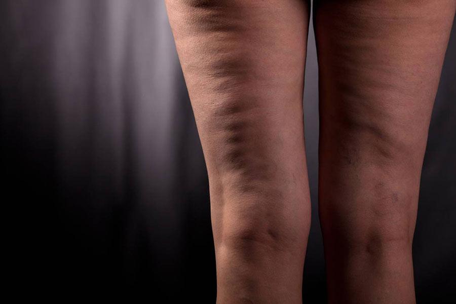 cellulite img gambe